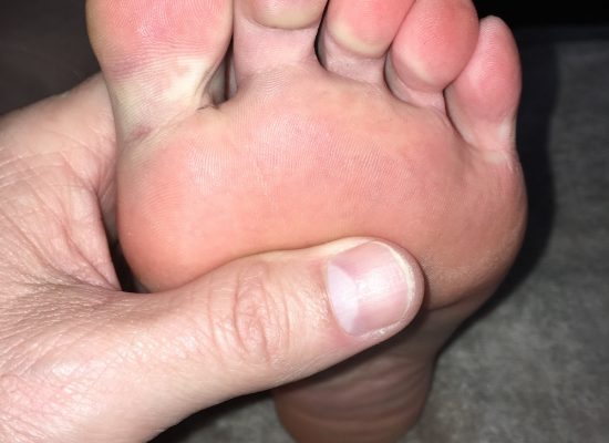 foot picture